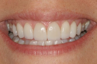after photo of dental patient smiling
